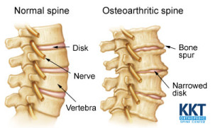 Signs and Symptoms Osteoarthritis