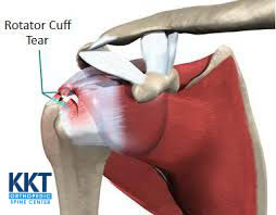 Symptoms of Rotator Cuff Injuries