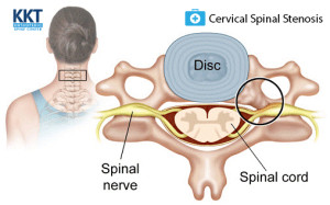 Signs and Symptoms Cervical Spinal Stenosis