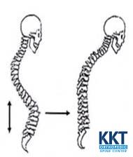 Symptoms of Kyphosis