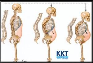 Symptoms of Osteoporosis
