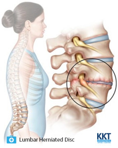 Causes ofLumbar Disc Herniation