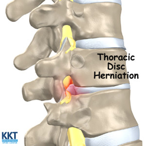 Thoracic Disc Herniation