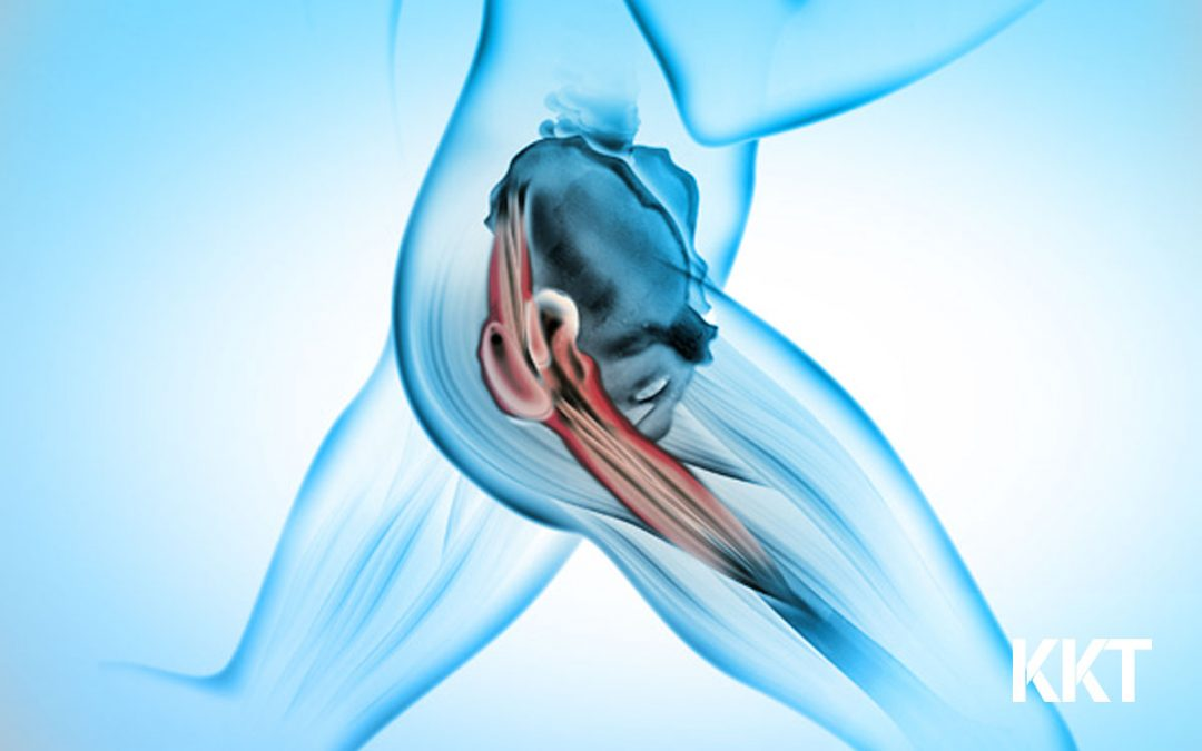 Live a Sciatica-free Life, Without Surgery!
