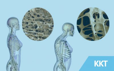 How to live with and manage with osteoporosis