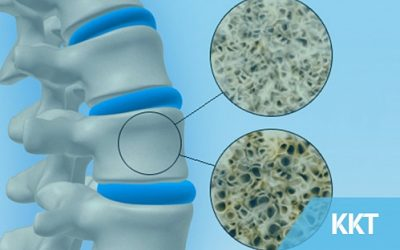 Osteoporosis – Who Is At Risk?