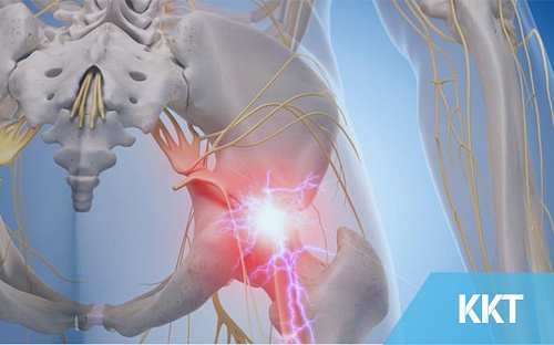 Are You Really Suffering From Sciatica??