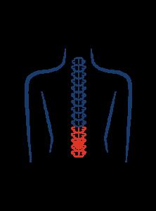 Lumber spinal stenosis