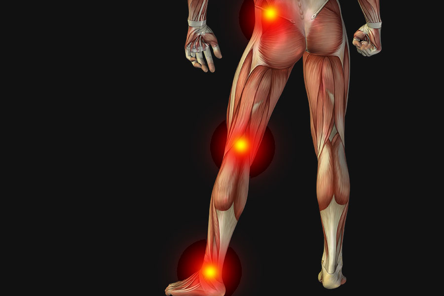 sciatica symptoms constant pain