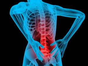 Back Pain Causes Acute Pain