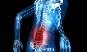 Back Pain Causes Chronic Pain