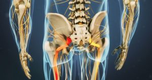 Back Pain Causes Sciatica