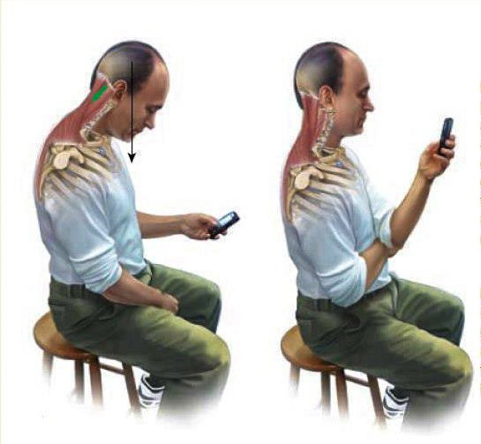 Prevent Neck Pain Text Neck