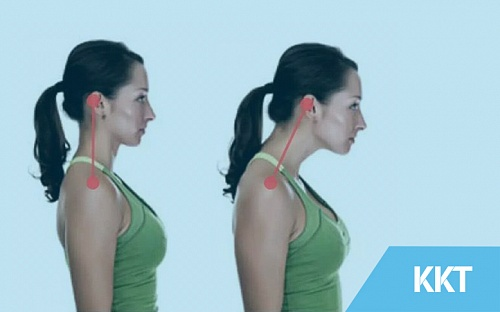 Postures That Cause Neck Pain