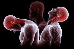 Neck Pain Reasons Whiplash