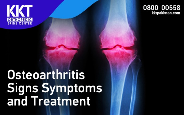 Osteoarthritis Signs Symptoms and Treatment