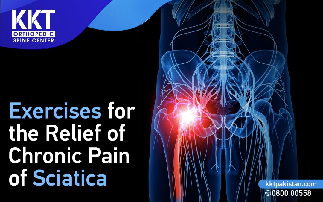 Exercises for the Relief of Chronic Pain of Sciatica