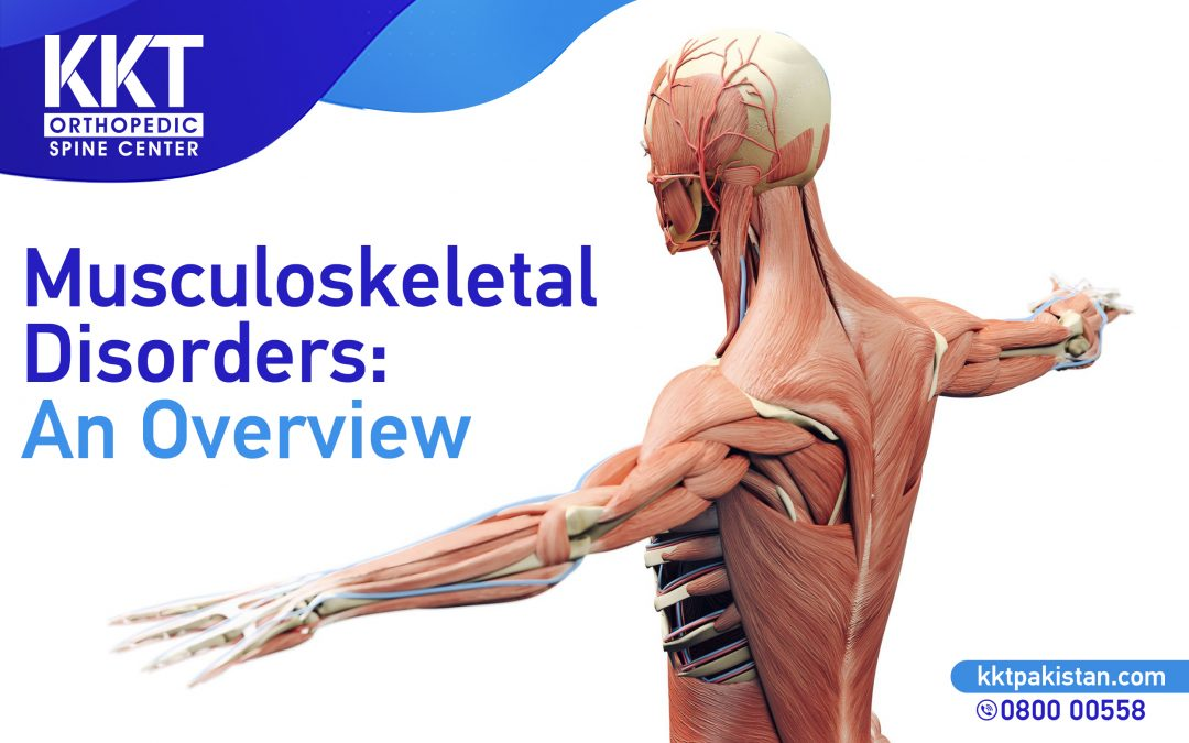 Musculoskeletal Disorders: An Overview