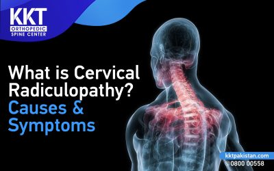 What is Cervical Radiculopathy? Causes and Symptoms