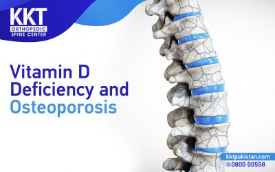 Vitamin D Deficiency and Osteoporosis