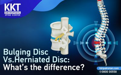 Bulging Disc Vs. Herniated Disc: What's the difference?